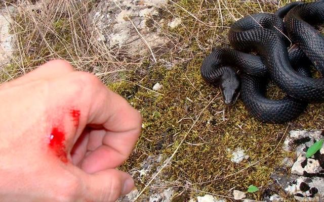 Первая помощь при укусе змеи: что делать при укусе ядовитой змеи