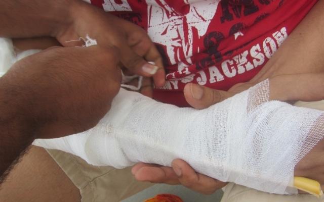 закрытый перелом руки первая помощь